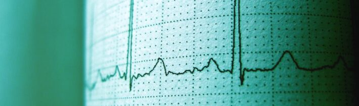 How Anomaly Detection Can Boost Your Business